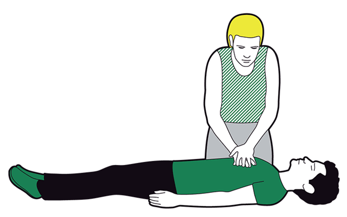 Cardiac arrest first aid - repeat compressions 30 times