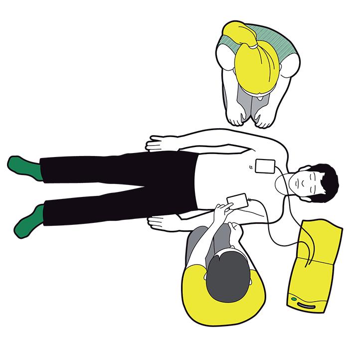 Using a defibrillator - attach pads