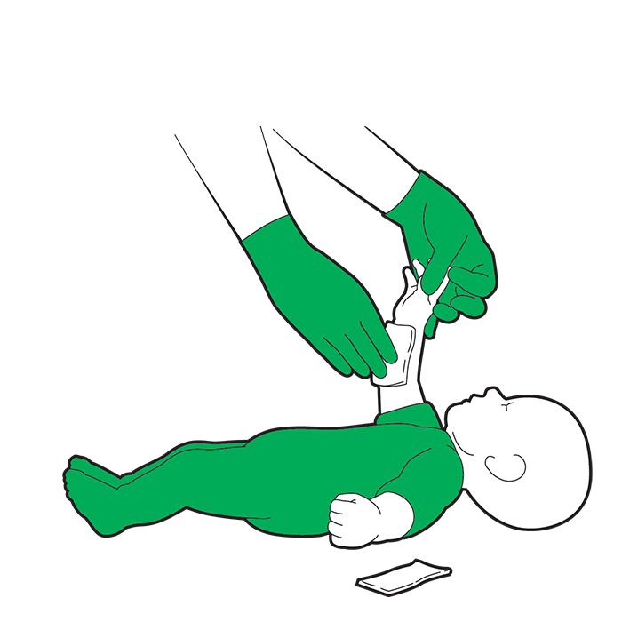 Baby severe bleed first aid - if blood seeps through both dressings, remove and replace with fresh dressing