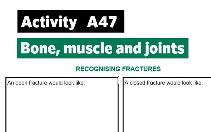 KS4-A47-Recognise fractures